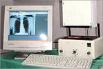 Флюорографический дигитайзер. Открыть в новом окне [76Kb]